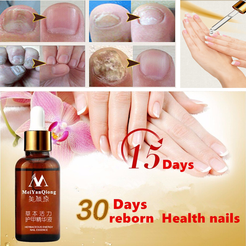 100% Original Fungal Nail Treatment Essence Nail and Foot Whitening Toe Nail Fungus,ProfessionRemoval Feet Care Nail Gel