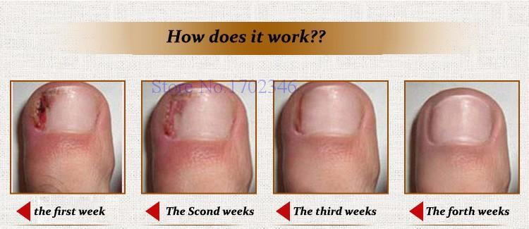 функционал о чем говорят ногти на ногах человека популярным последние несколько